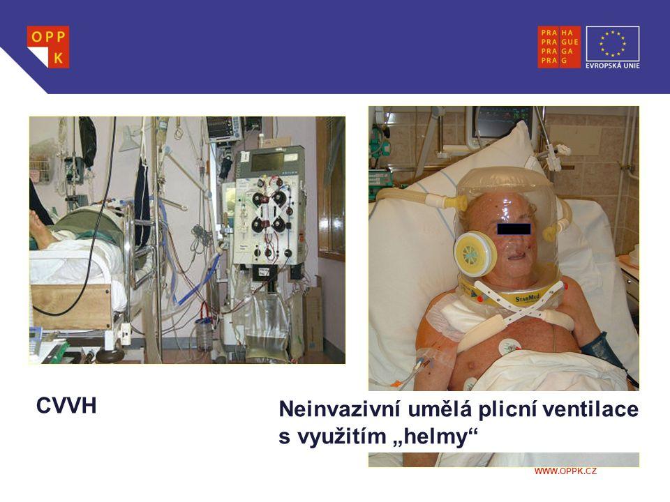 """CVVH Neinvazivní umělá plicní ventilace s využitím """"helmy"""