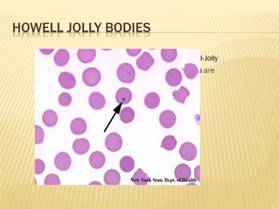 Howell Jolly bodies Howell-Jolly