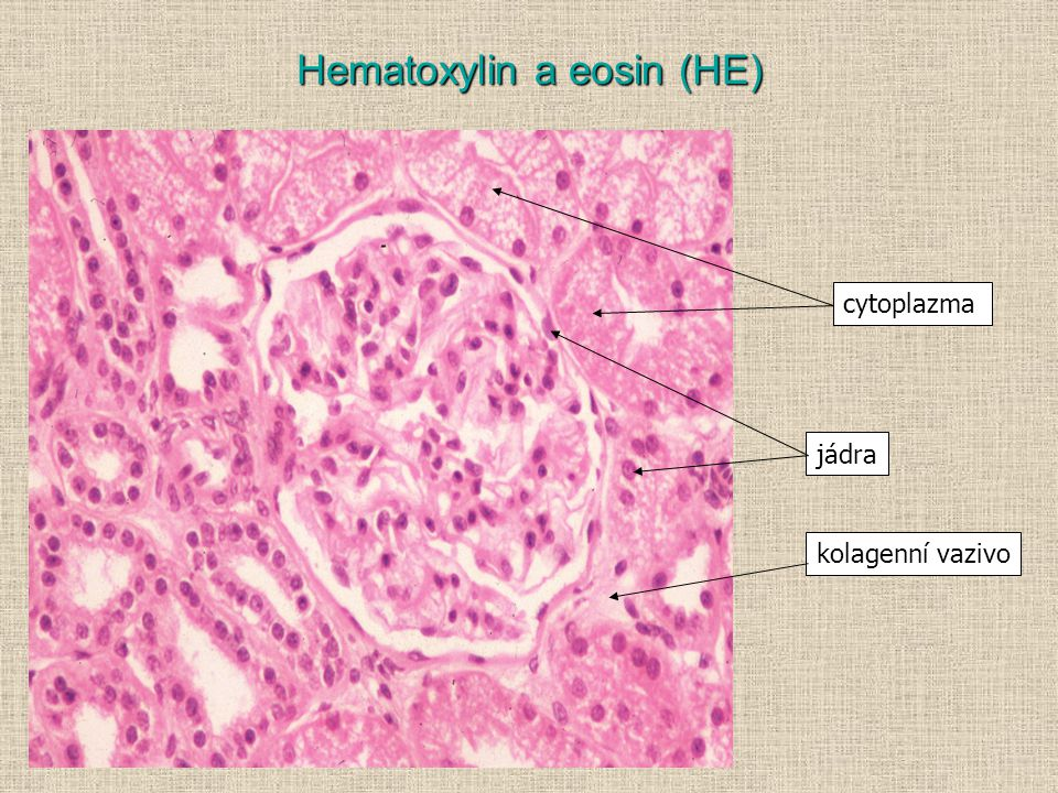 Hematoxylin a eosin (HE)