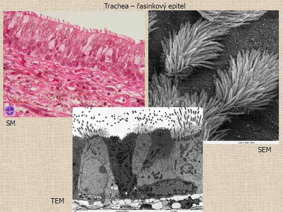 Trachea – řasinkový epitel