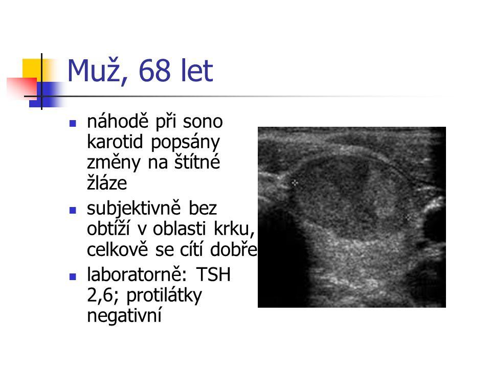 Muž, 68 let náhodě při sono karotid popsány změny na štítné žláze