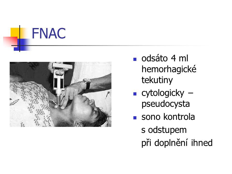 FNAC odsáto 4 ml hemorhagické tekutiny cytologicky – pseudocysta