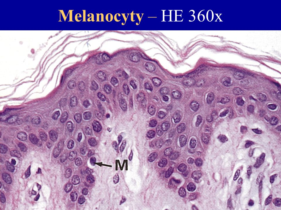 Melanocyty – HE 360x