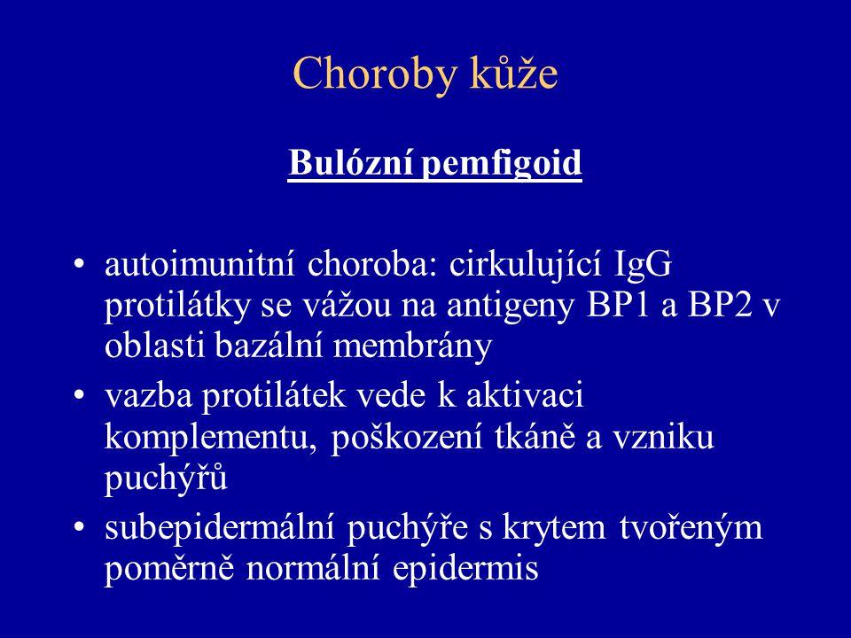 Choroby kůže Bulózní pemfigoid