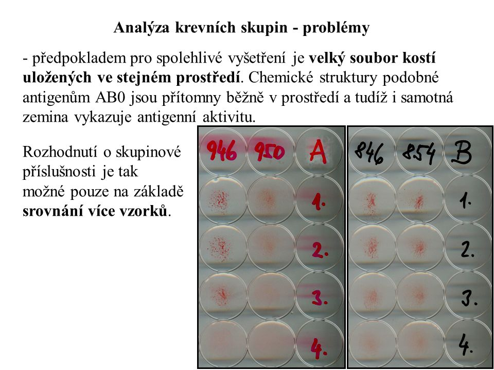 Analýza krevních skupin - problémy