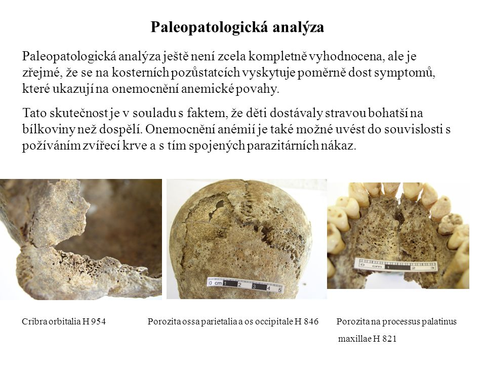 Paleopatologická analýza