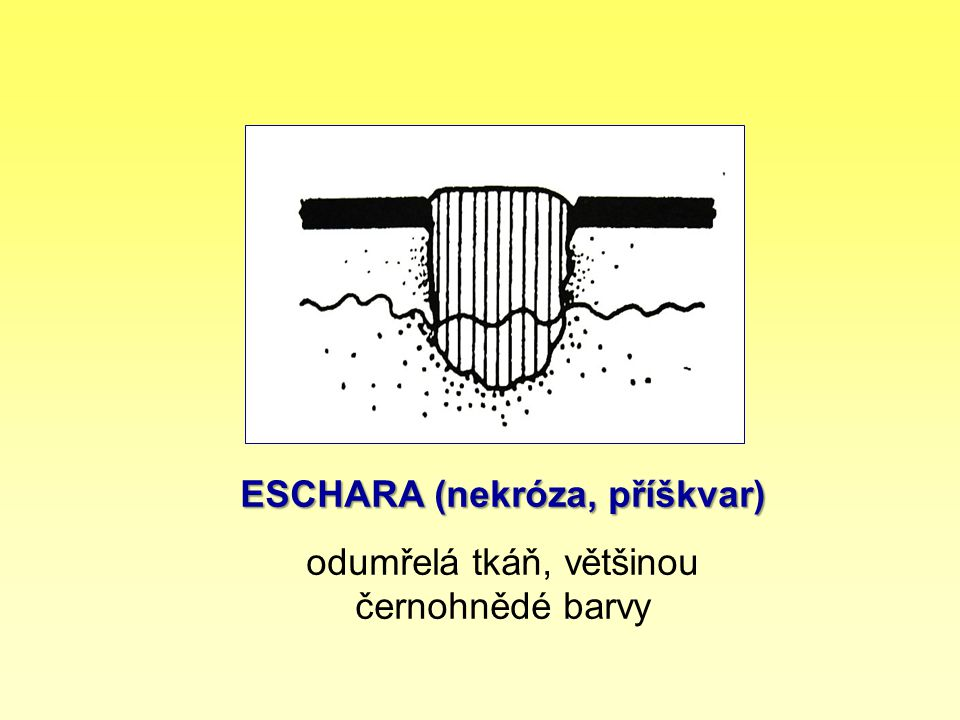 ESCHARA (nekróza, příškvar)