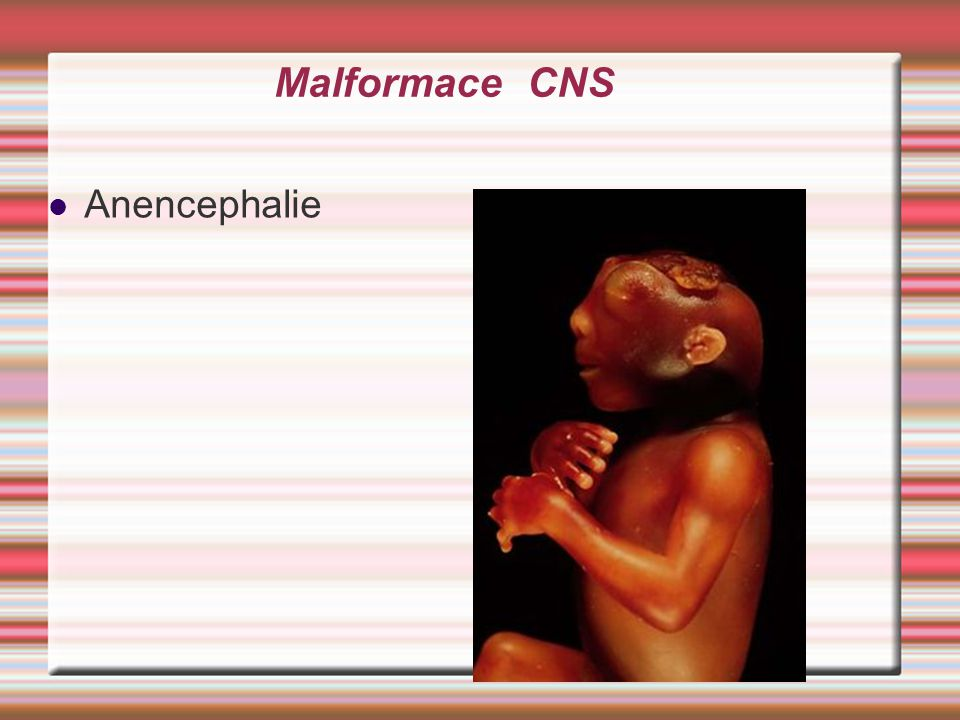 Malformace CNS Anencephalie