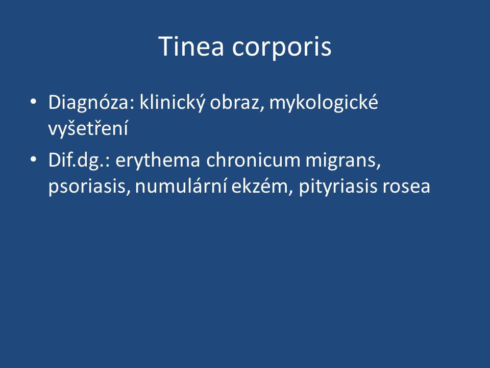 Tinea corporis Diagnóza: klinický obraz, mykologické vyšetření