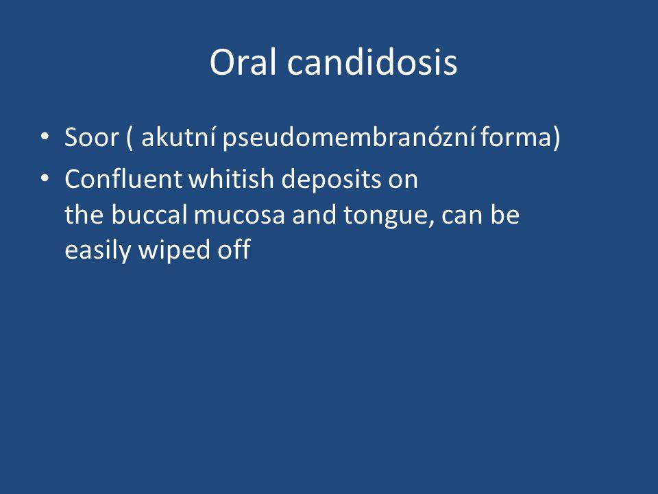 Oral candidosis Soor ( akutní pseudomembranózní forma)
