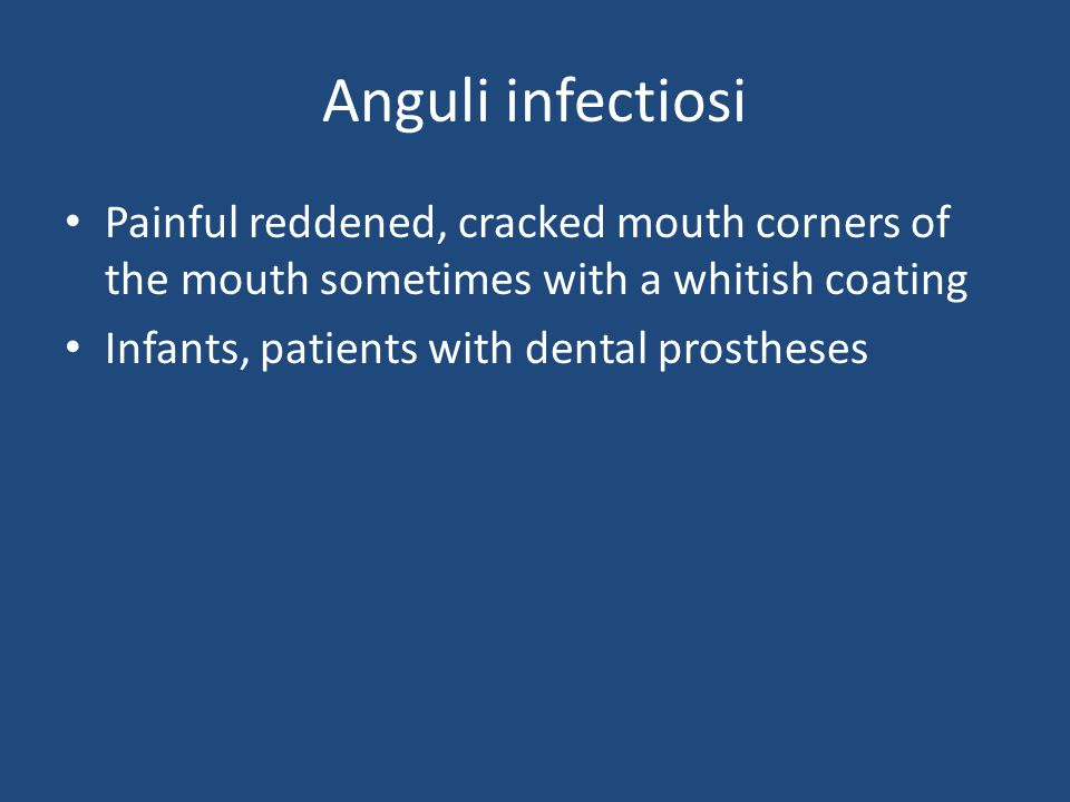 Anguli infectiosi Painful reddened, cracked mouth corners of the mouth sometimes with a whitish coating.