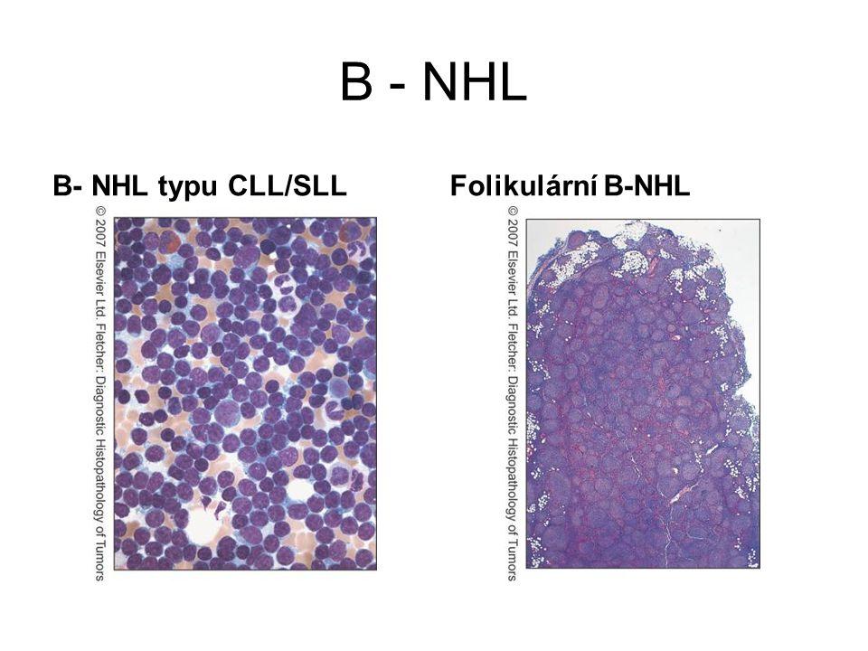 B - NHL B- NHL typu CLL/SLL Folikulární B-NHL