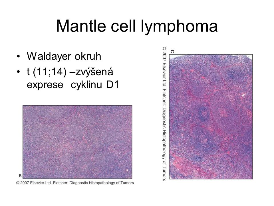 Mantle cell lymphoma Waldayer okruh