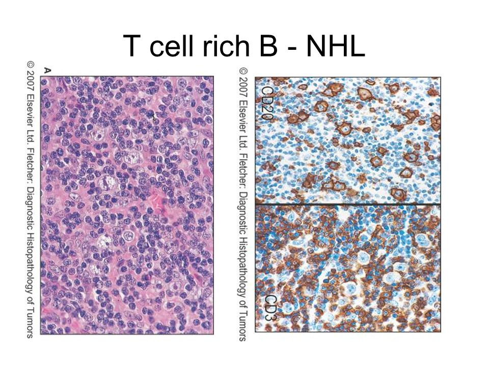 T cell rich B - NHL
