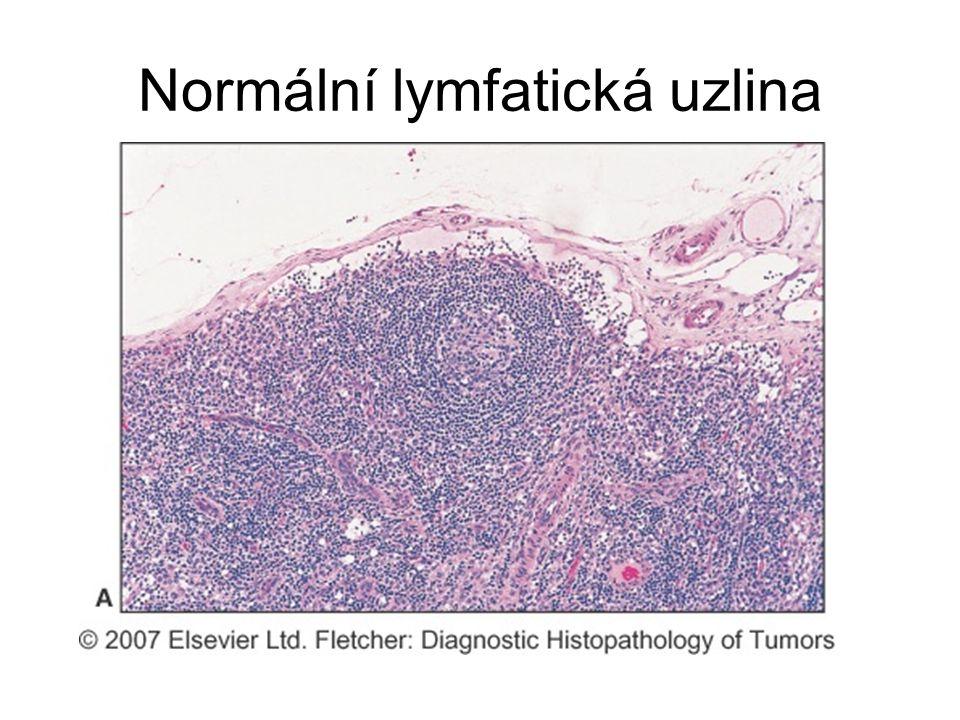 Normální lymfatická uzlina