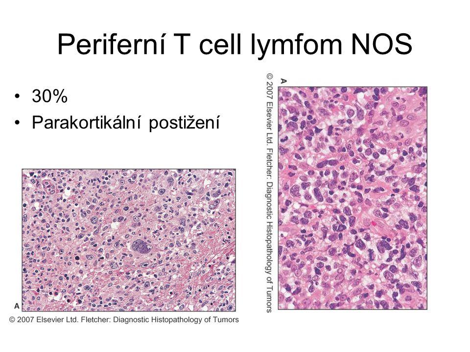 Periferní T cell lymfom NOS