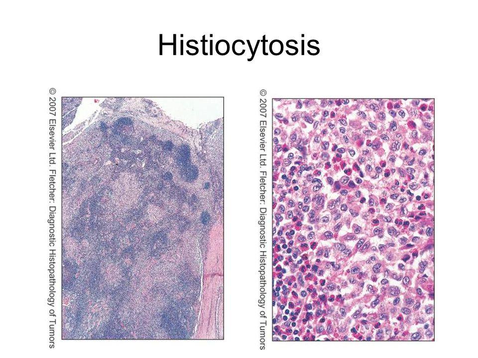 Histiocytosis