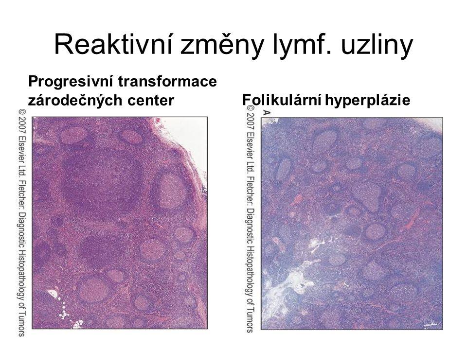 Reaktivní změny lymf. uzliny