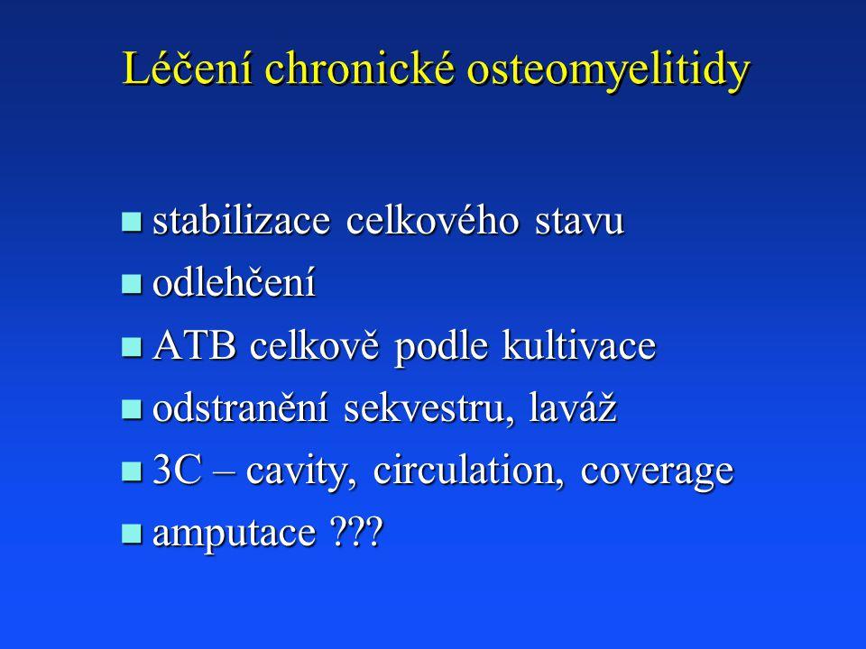 Léčení chronické osteomyelitidy