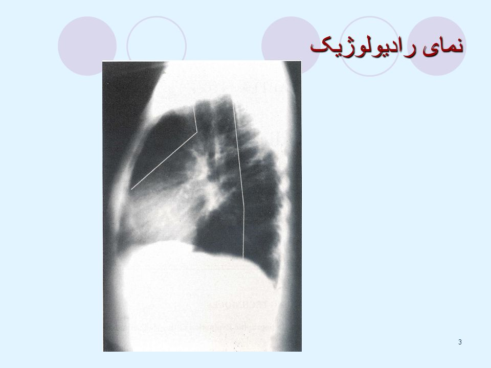 نمای رادیولوژیک