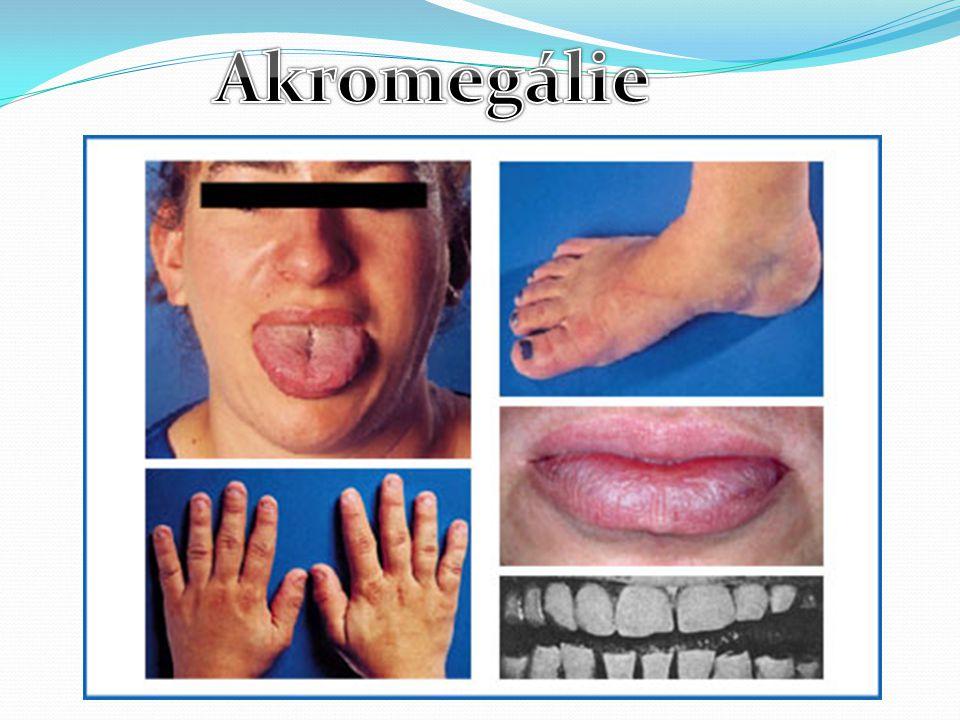 Akromegálie