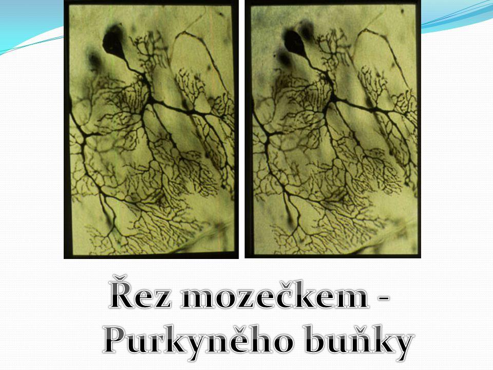 Řez mozečkem - Purkyněho buňky