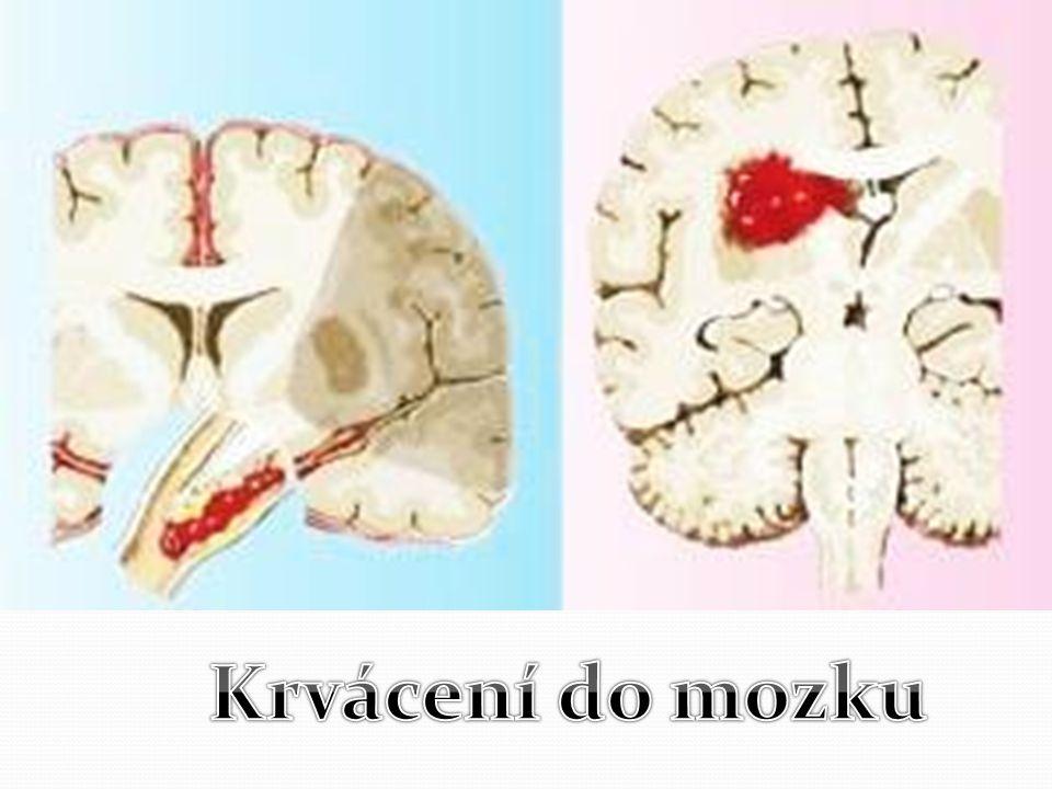 Krvácení do mozku