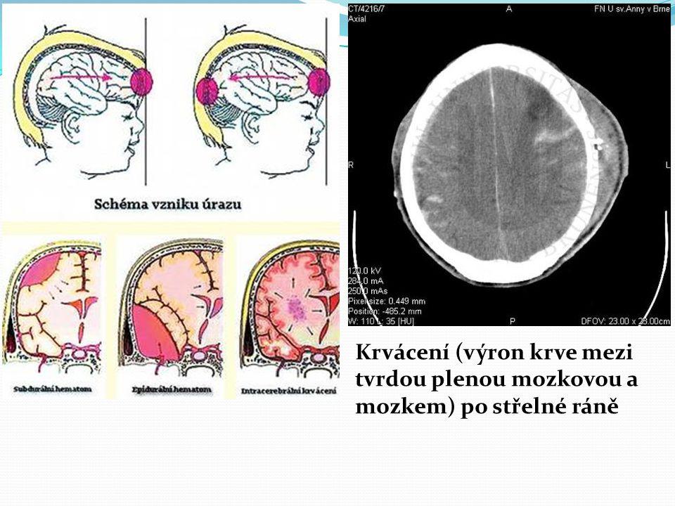 Krvácení (výron krve mezi tvrdou plenou mozkovou a mozkem) po střelné ráně
