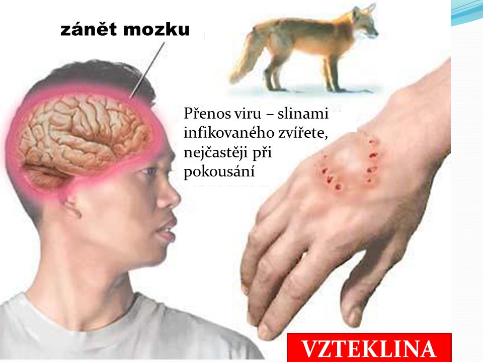VZTEKLINA zánět mozku Přenos viru – slinami infikovaného zvířete, nejčastěji při pokousání