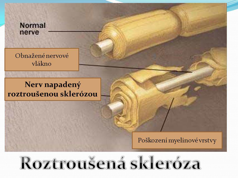 Nerv napadený roztroušenou sklerózou