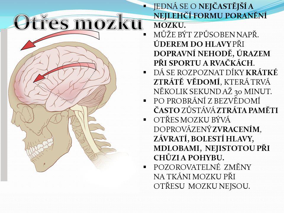 Otřes mozku JEDNÁ SE O NEJČASTĚJŠÍ A NEJLEHČÍ FORMU PORANĚNÍ MOZKU.