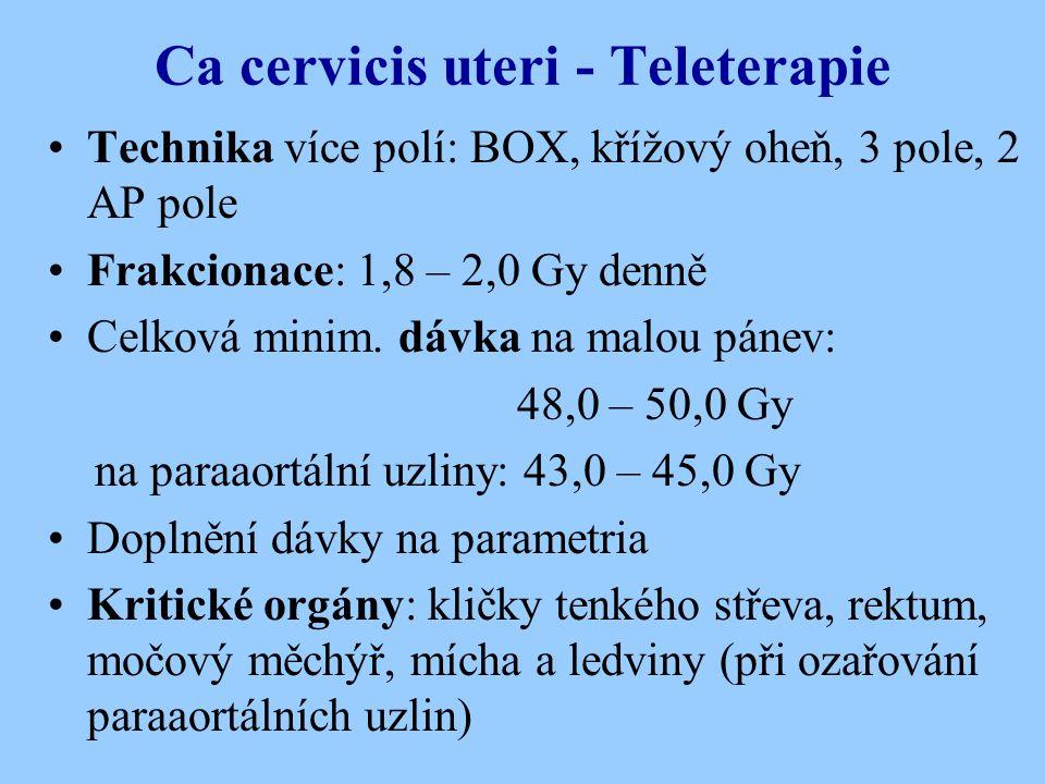 Ca cervicis uteri - Teleterapie
