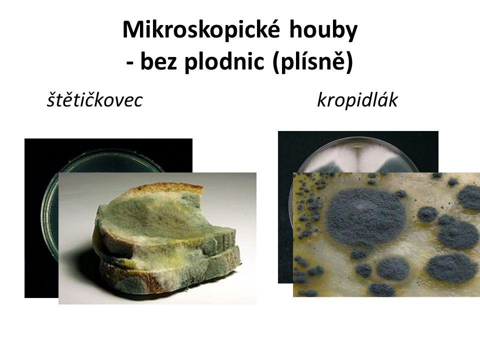 Mikroskopické houby - bez plodnic (plísně)