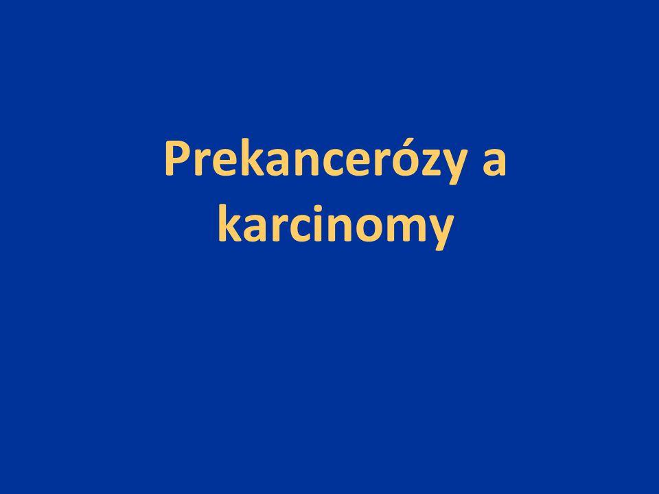 Prekancerózy a karcinomy