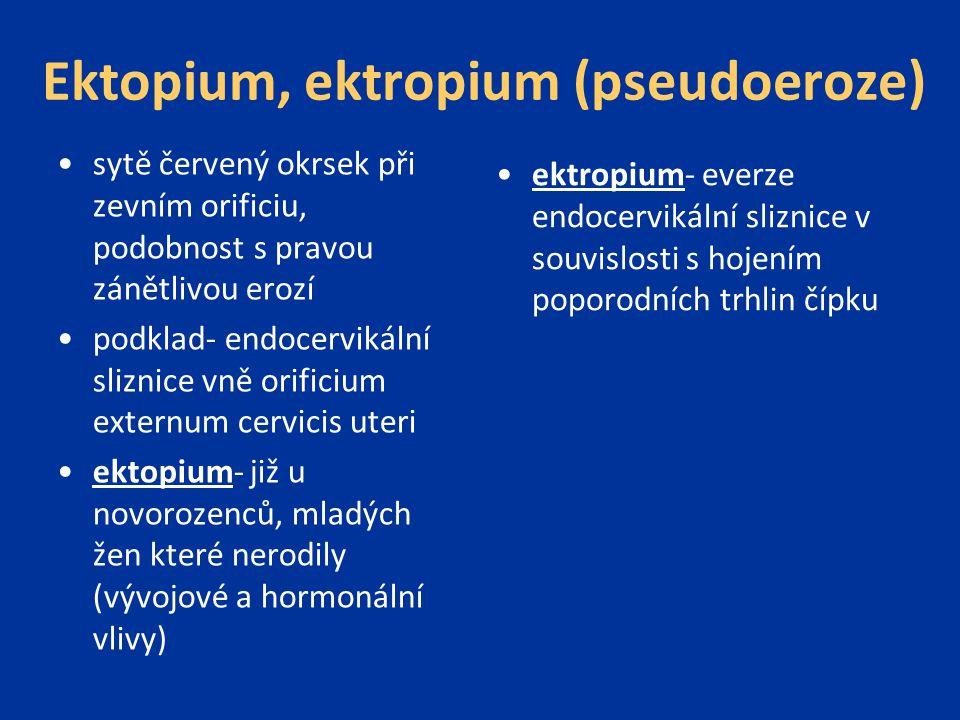 Ektopium, ektropium (pseudoeroze)