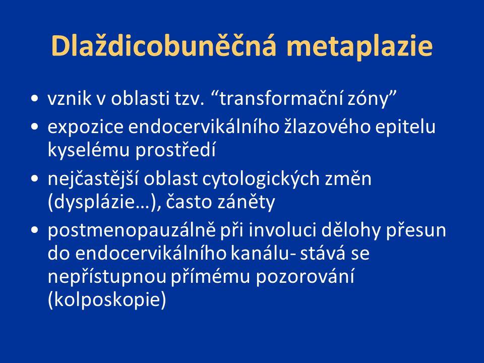 Dlaždicobuněčná metaplazie