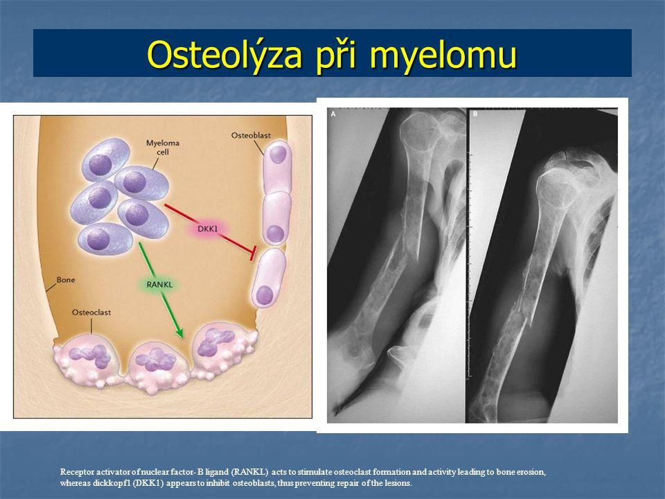 Osteolýza při myelomu