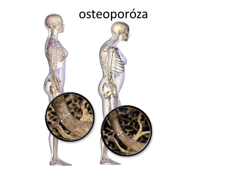 osteoporóza Autor: BruceBlaus