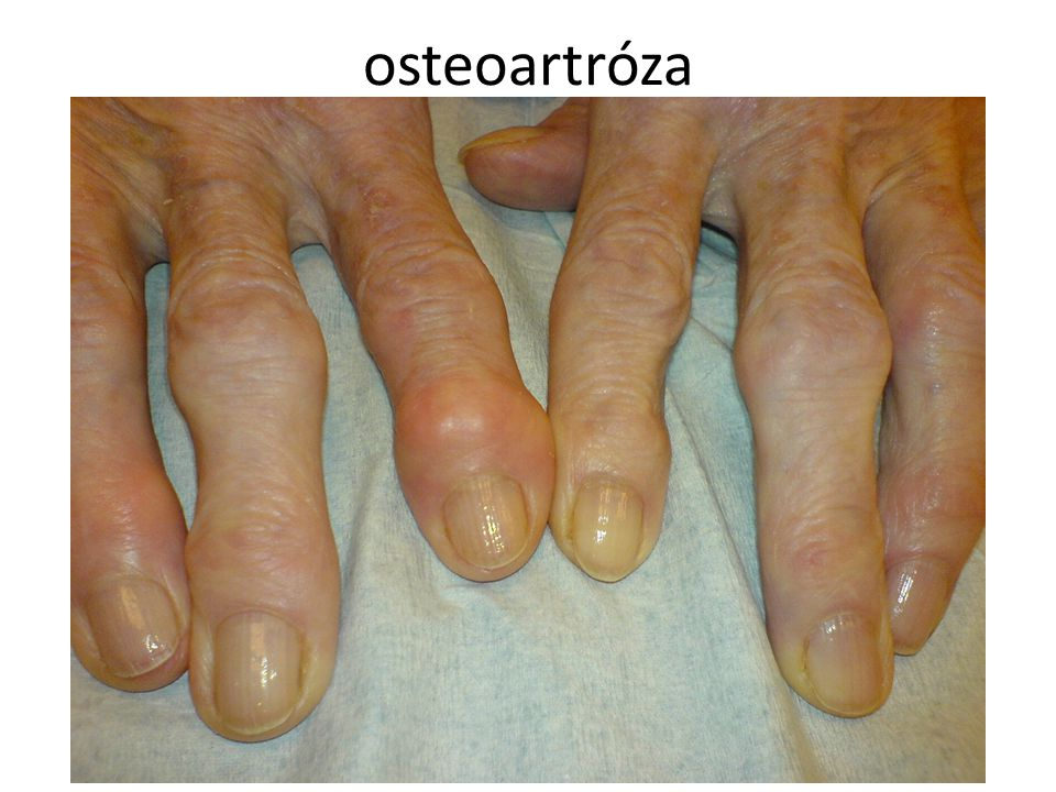 osteoartróza autor: Drahreg01