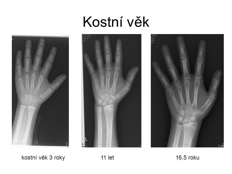 Kostní věk kostní věk 3 roky 11 let 16,5 roku.