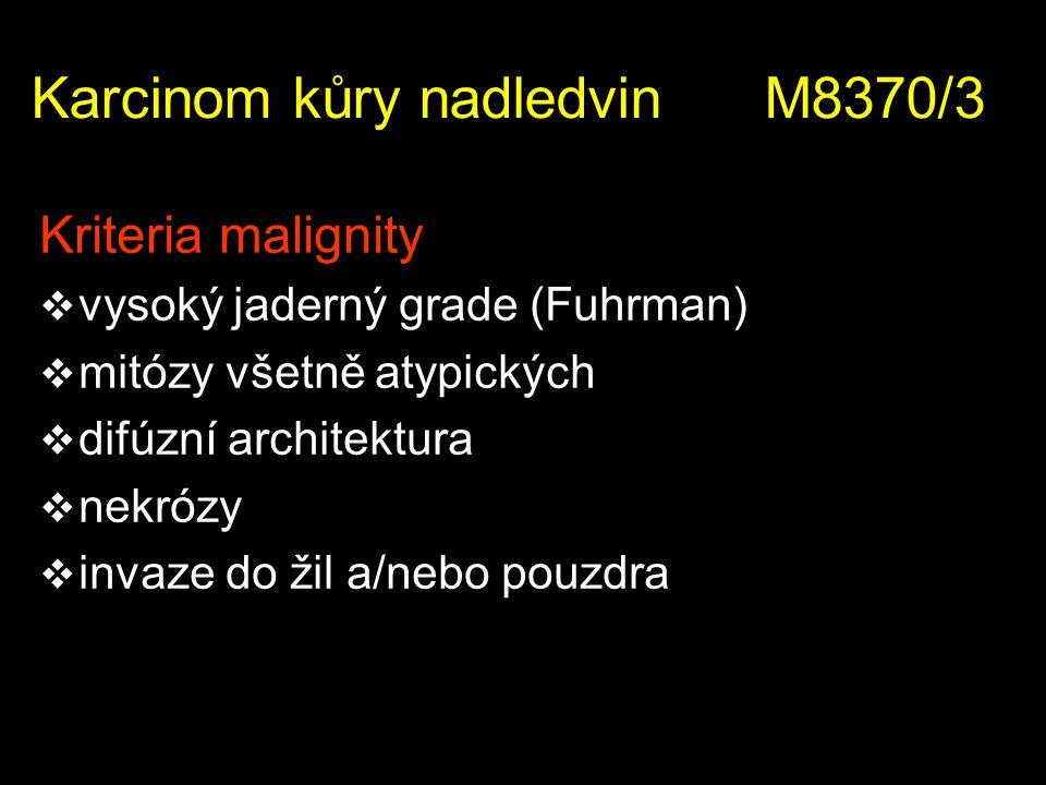Karcinom kůry nadledvin M8370/3