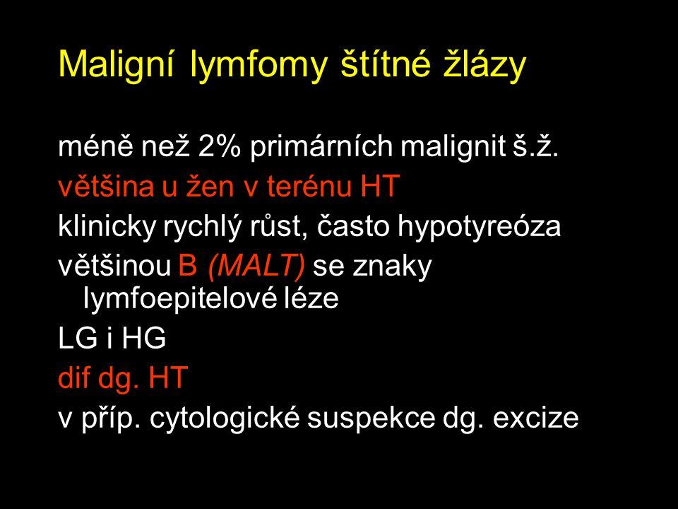 Maligní lymfomy štítné žlázy
