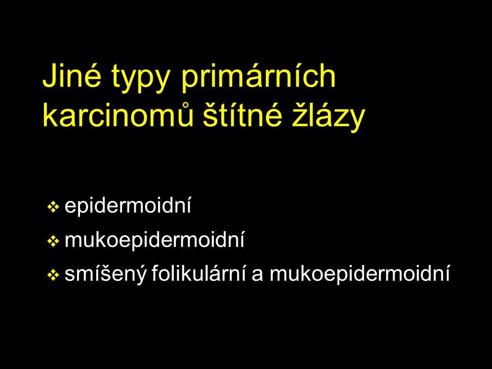 Jiné typy primárních karcinomů štítné žlázy