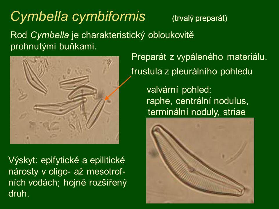 Cymbella cymbiformis (trvalý preparát)