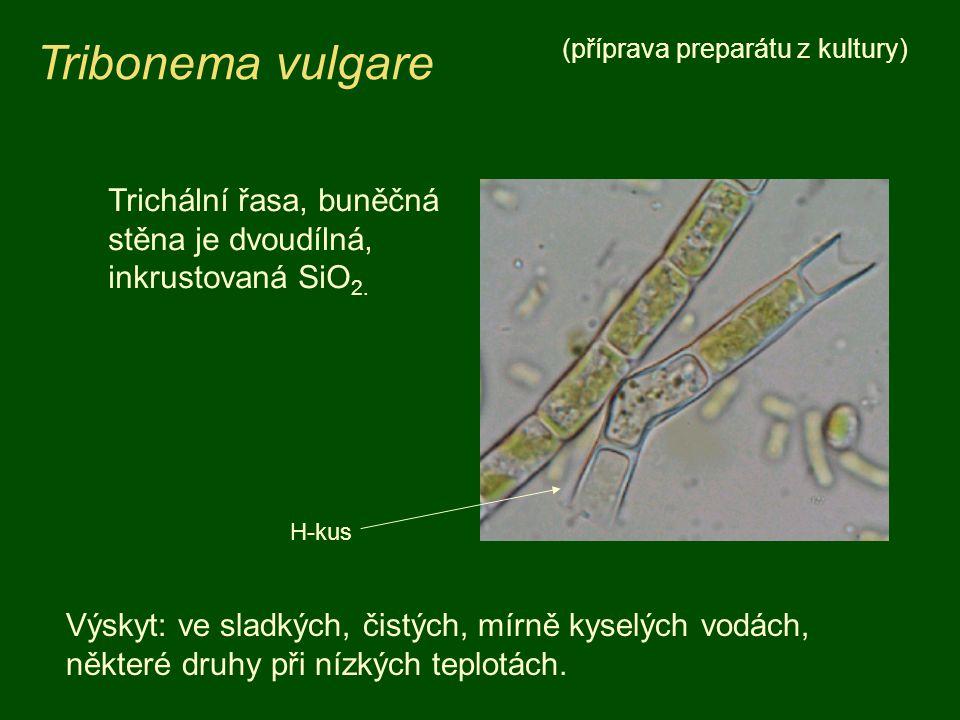 Tribonema vulgare (příprava preparátu z kultury) Trichální řasa, buněčná stěna je dvoudílná, inkrustovaná SiO2.