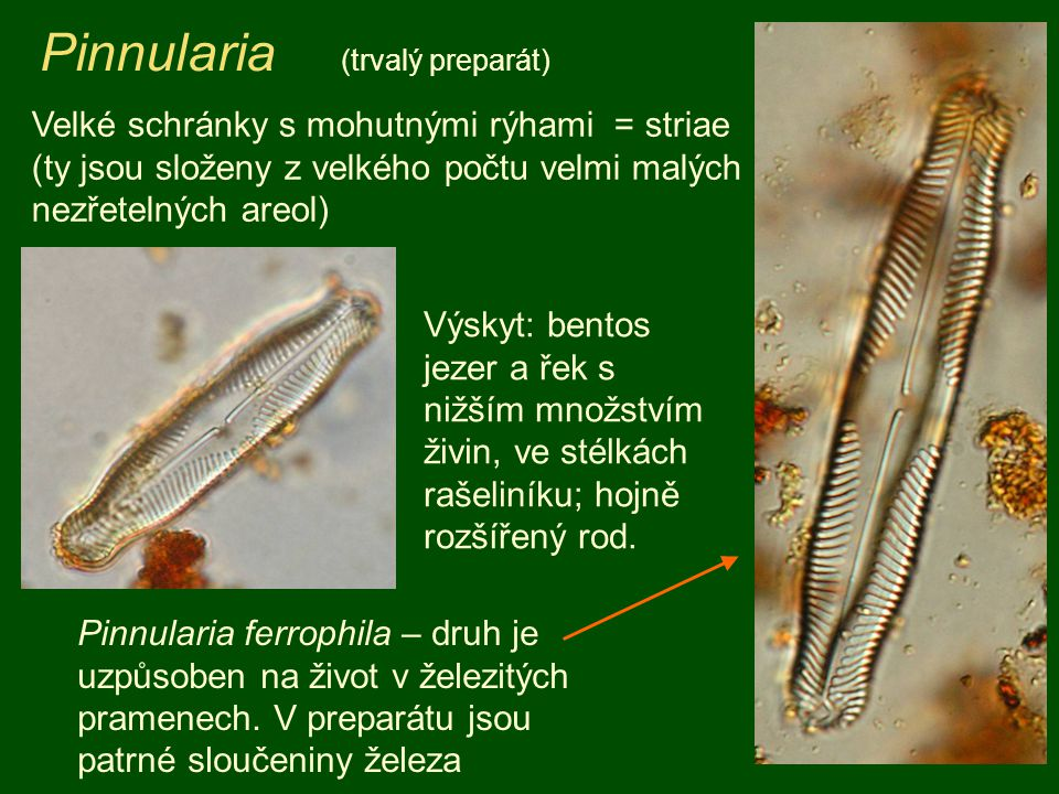 Pinnularia (trvalý preparát)