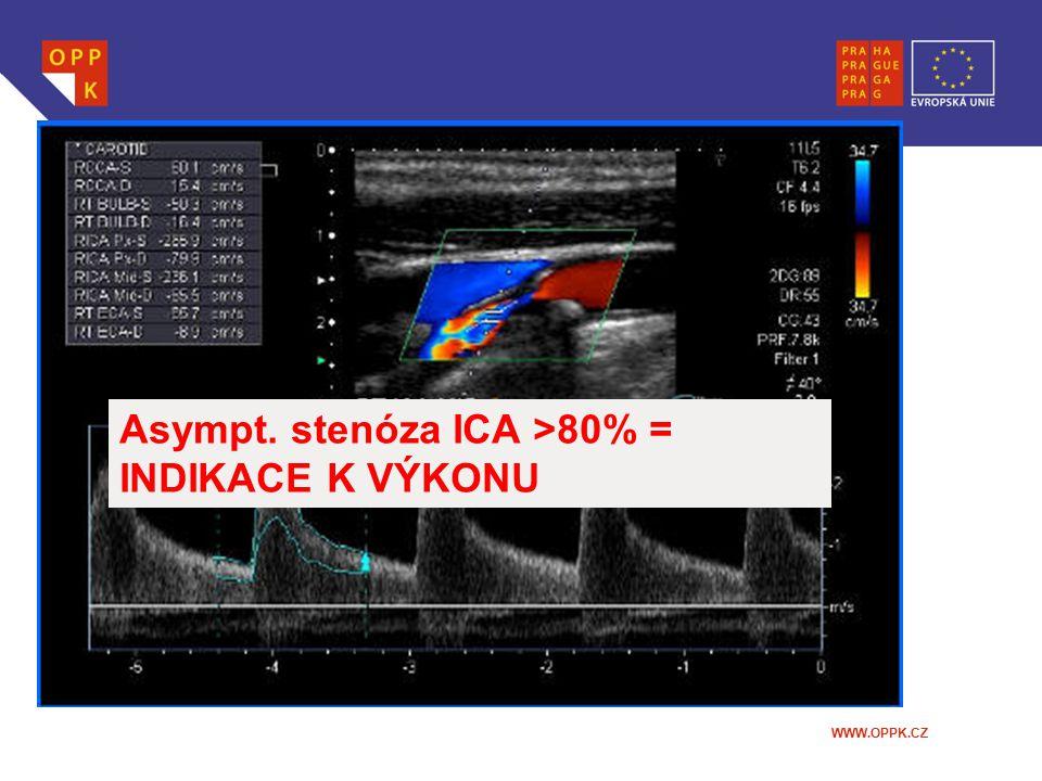 Asympt. stenóza ICA >80% = INDIKACE K VÝKONU