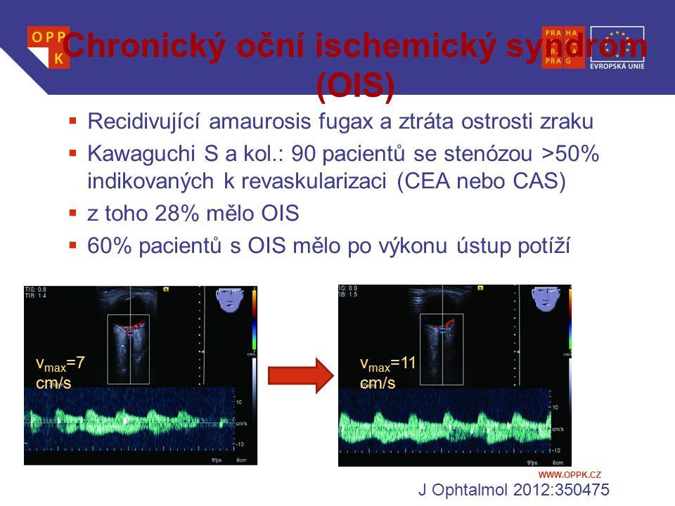 Chronický oční ischemický syndrom (OIS)