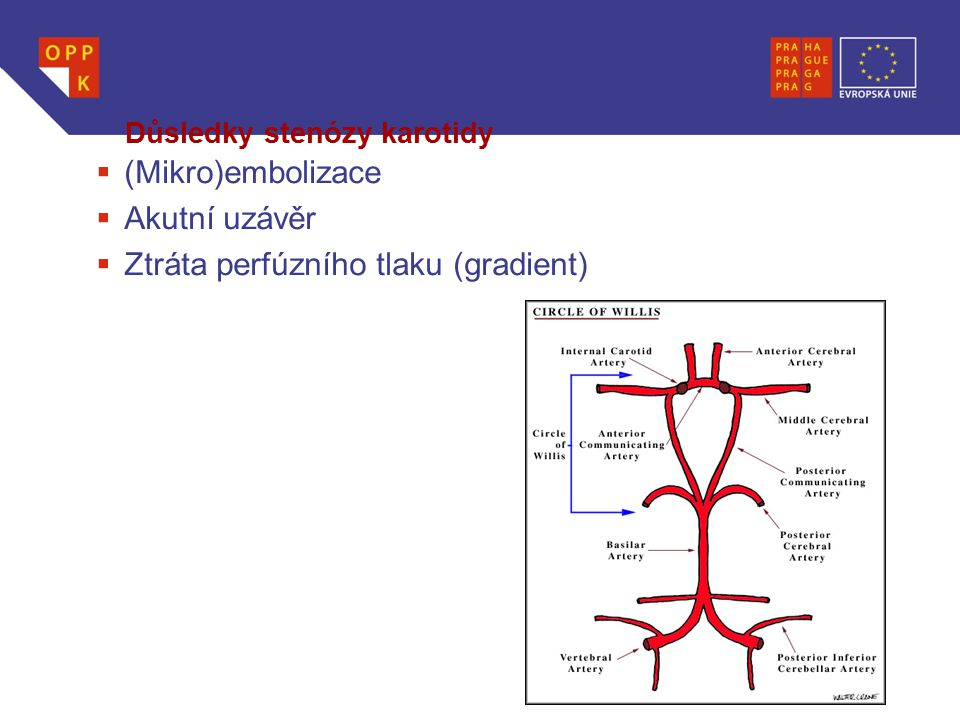 Důsledky stenózy karotidy