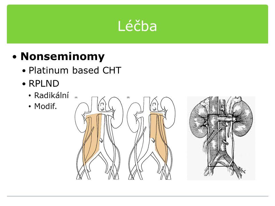 Léčba Nonseminomy Platinum based CHT RPLND Radikální Modif.